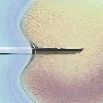 tratamiento-fertilidad